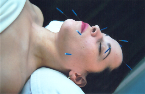 Acupuncture facelift example picture